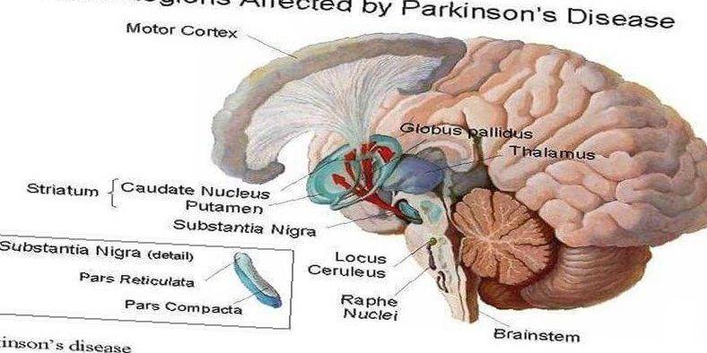 how cannabidiol cbd affects parkinsons disease