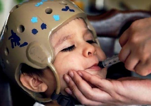 epilepsy medical marijuana